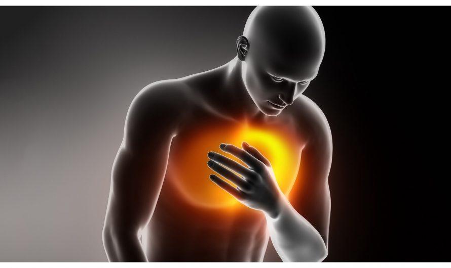 Острый грудной синдром